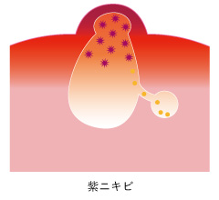 ニキビアイコン-紫ニキビ