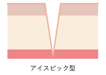 ニキビ跡図_アイス