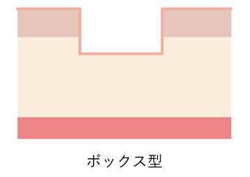 ニキビ跡図_ボックス
