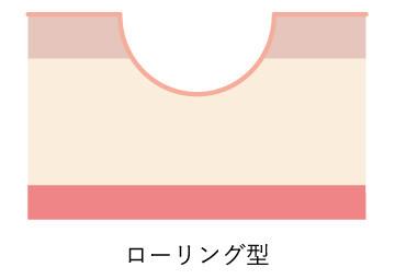ニキビ跡図_ローリング