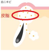 白ニキビ毛穴角質皮脂